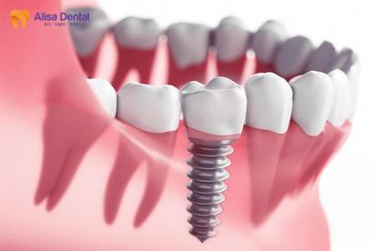 Tại sao nên trồng răng Implant Alisa Giảng Võ, Đống Đa, Hà Nội