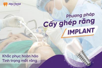 6 PHÁT HIỆN MỚI NHẤT về trồng răng implant không thể bỏ qua