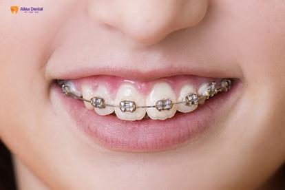 Giá niềng răng hô bao nhiêu tiền? – Bảng giá chi tiết cập nhật